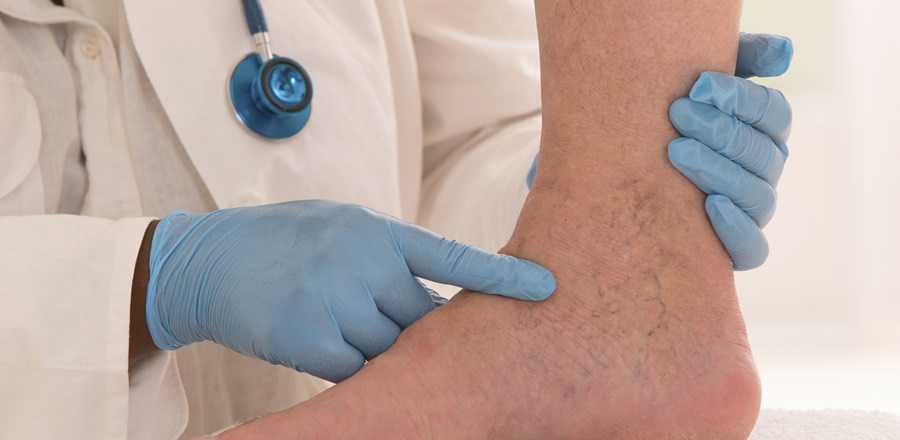 Vein Treatment Center Exam