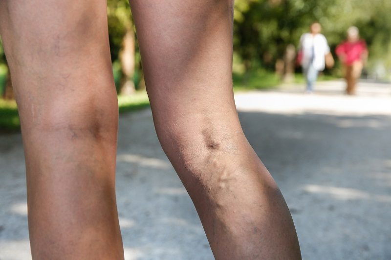 Woman's Legs with Varicose Veins