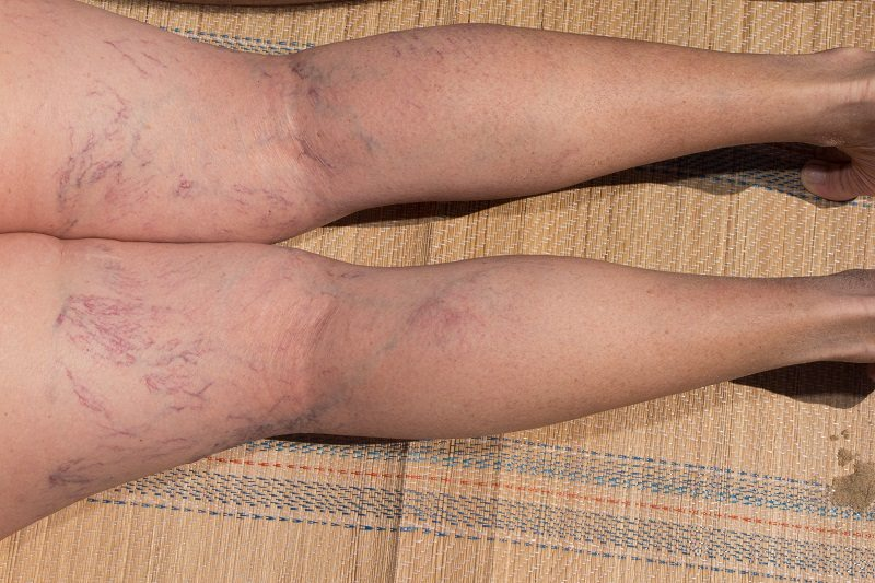 Occupations Most at Risk for Varicose Veins – How to Help