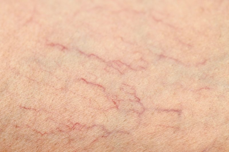 Why Sclerotherapy Is The Most Common Spider Vein Treatment
