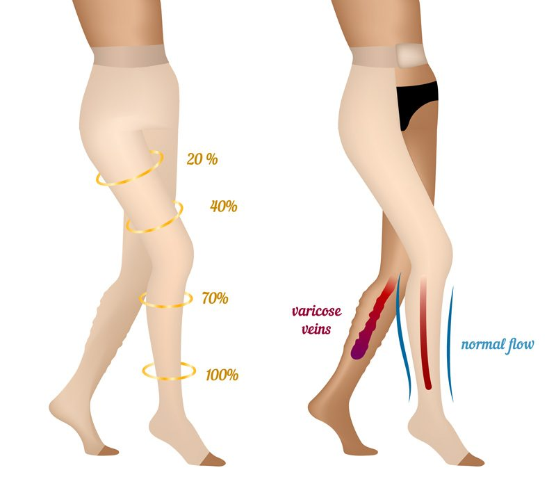 a2b5238594 Compression stockings play an instrumental role in optimizing vein care  treatment. However, some people find them a bit hot and confining –  especially in ...