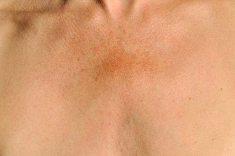 Melasma: Symptoms and Treatment - New Jersey Vein and Vascular