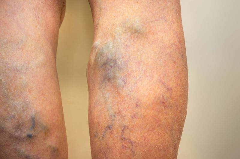 Legs Showing Venous Insufficiency with Varicose and Spider Veins