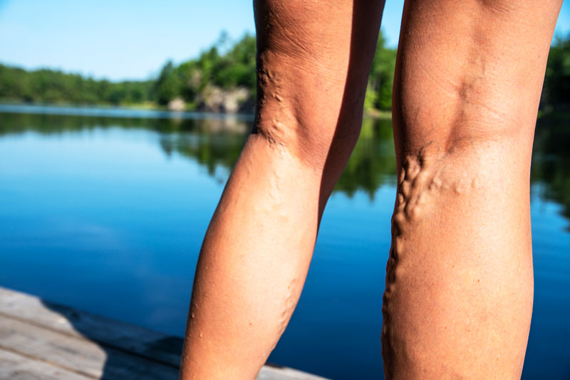 7 Myths about Varicose Veins