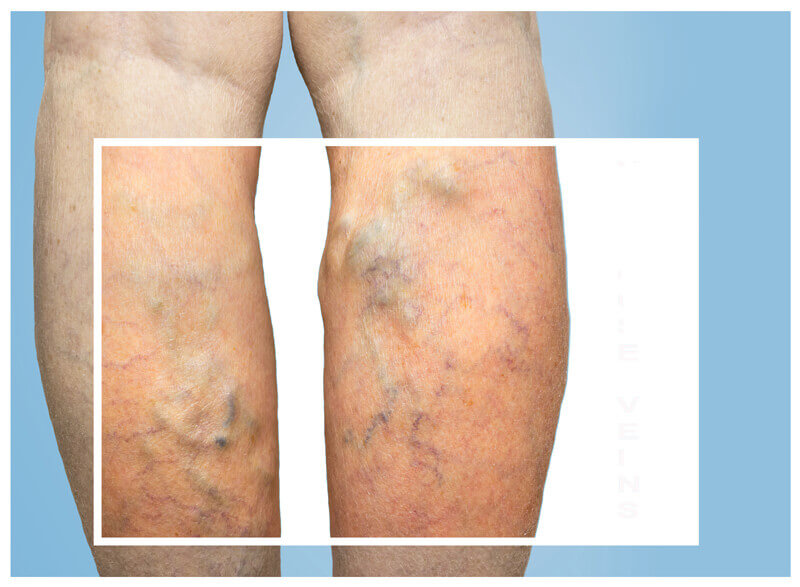 Cause and Prevention of Common Vein Conditions