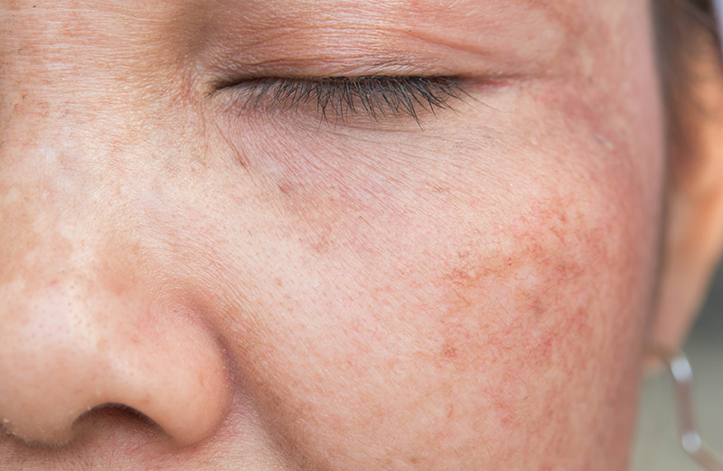 Hyperpigmentation on Face