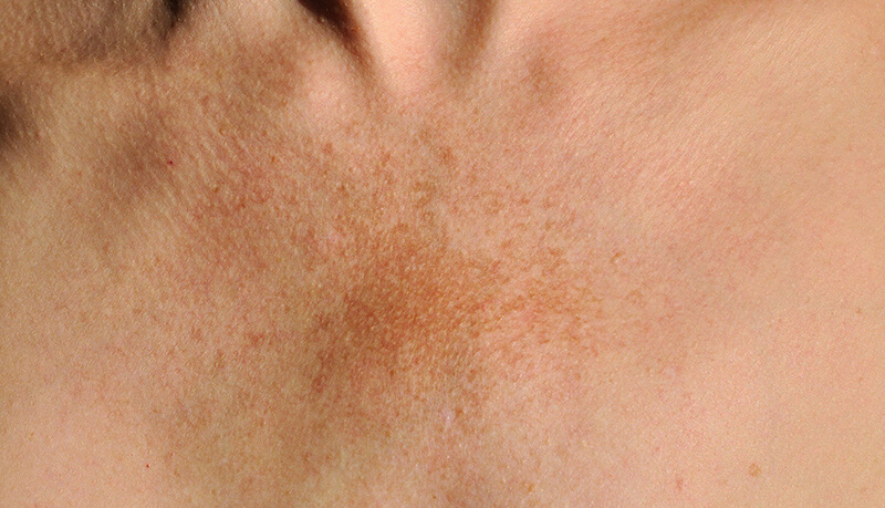 Melasma Patch