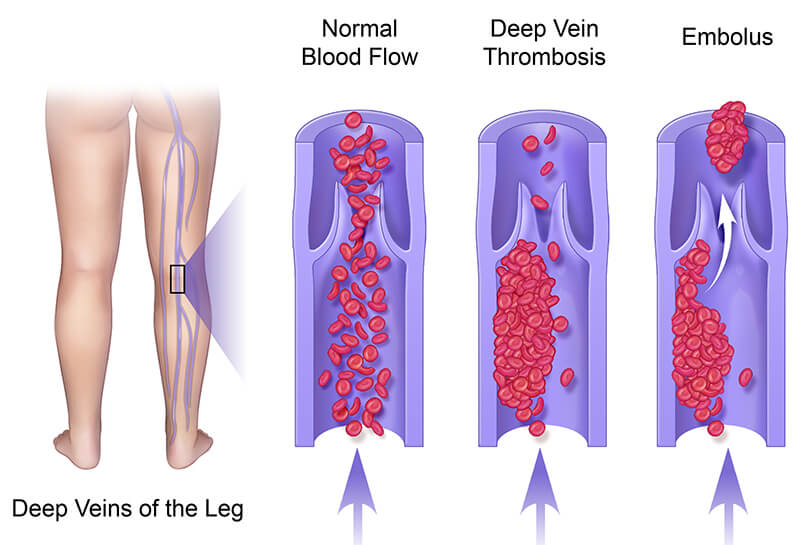 Deep-Veins-of--the-Leg
