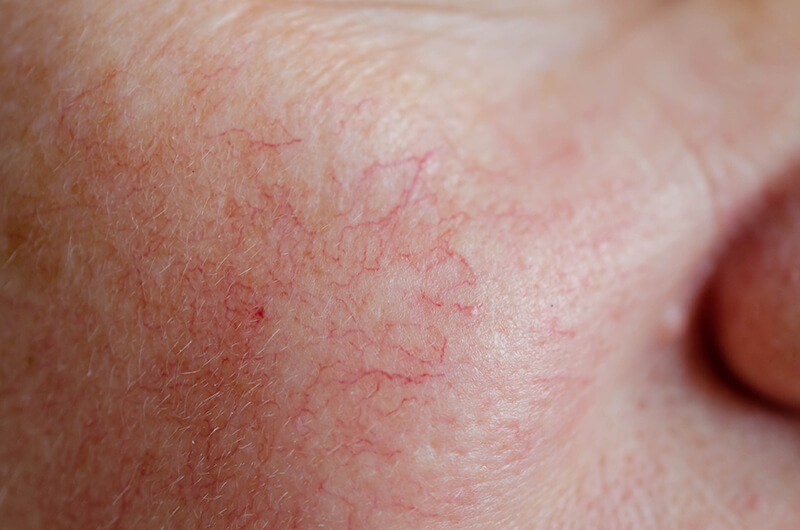 Spider Veins on Your Face: Causes and Treatment