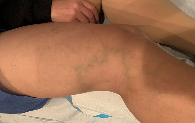 Varicose-Veins-Leg