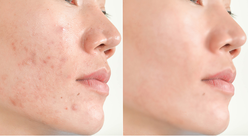 Before-After-Skin-Treatment