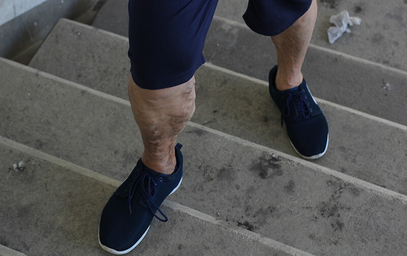 Varicose Veins: It's a Guy Thing