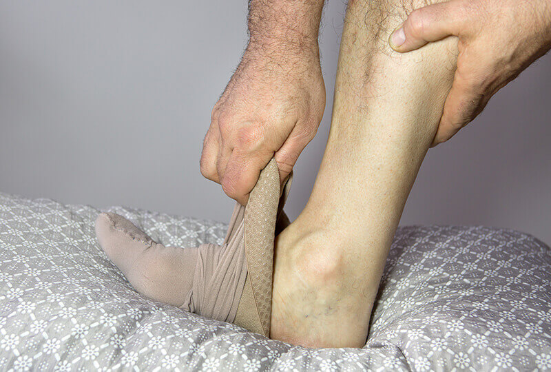 Putting-on-Compression-Sock