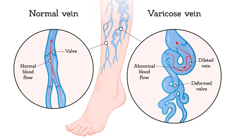 how to recognize unhealthy veins, varicose vein enlarged and twisted versus normal vein