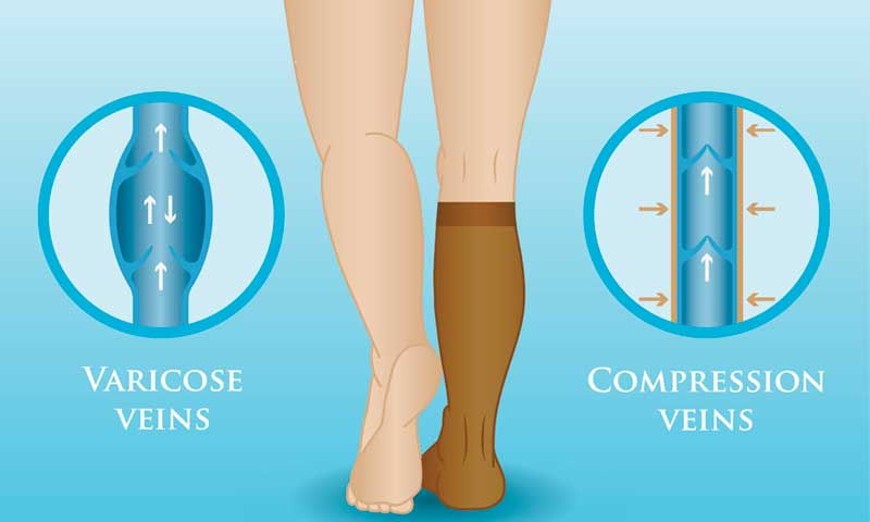 compression-therapy, comparison of varicose veins with and without compression socks