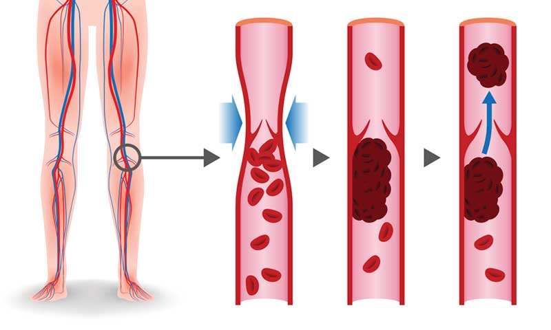 deep-vein-thrombosis, blood pooling in leg veins to form a clot