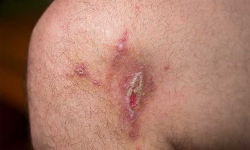 guide-to-leg-ulcers